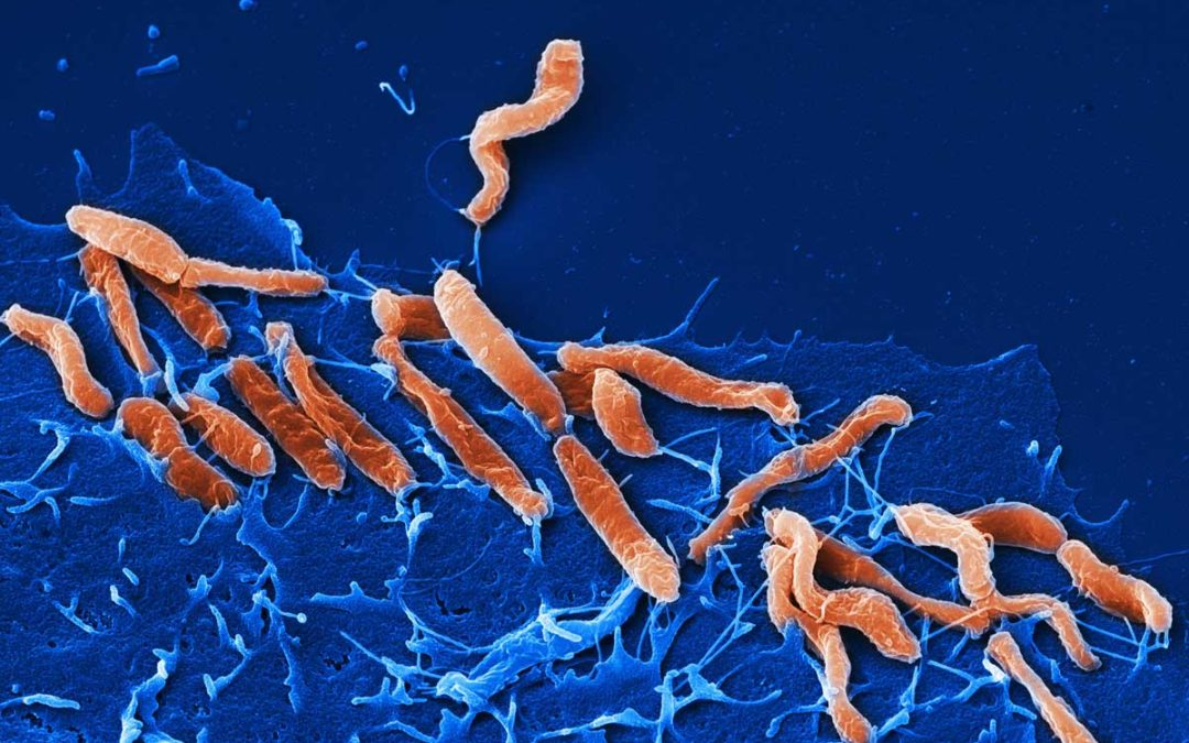 Breath Test (BT) per la ricerca dell'Helicobacter pylori (Hp)